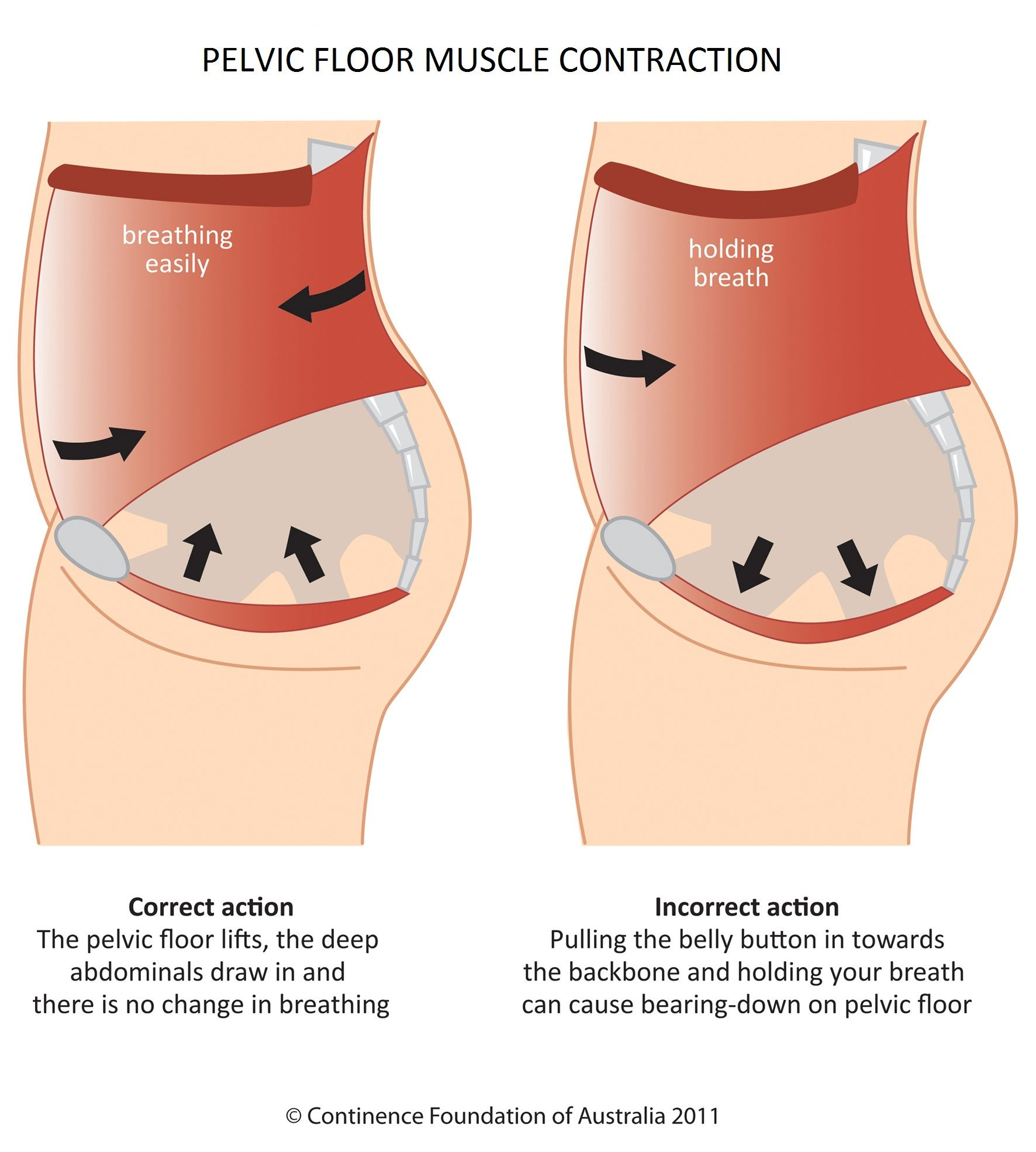 Take care of your Pelvic floor Pelvic Health infographic