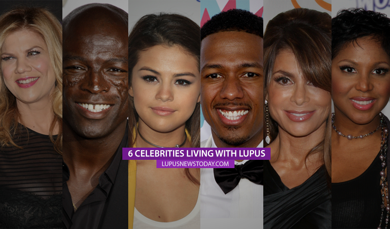 6 Celebrities Living With Lupus With Images Lupus Lupus Awareness Celebrities