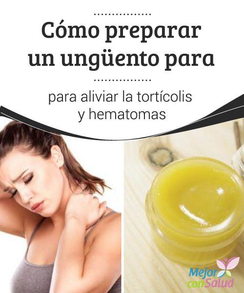 La Tortícolis Remedio Natural Para Aliviar El Dolor Mejor Con Salud Remedios Naturales Hematomas Remedios Caseros