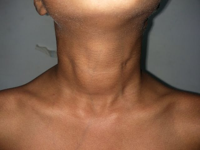 Image Of Enlarged Thyroid Gland With Images Enlarged Thyroid