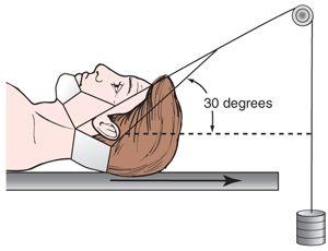Pin On Nursing Muscloskeletal
