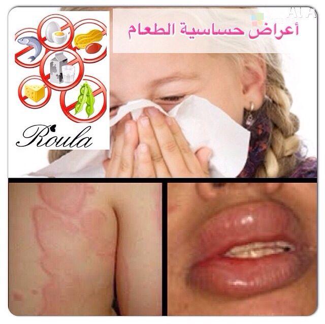 أعراض حساسية الطعام Sleep Eye Mask Beauty Beauty Hacks