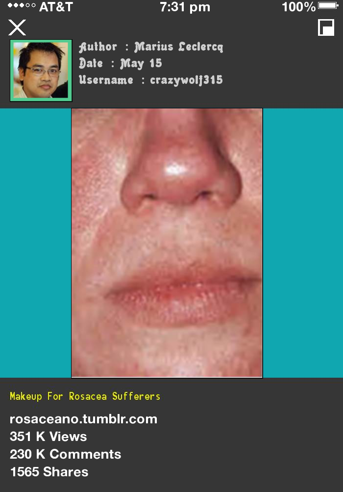 Makeup For Rosacea Sufferers 105209 Rosacea Free Forever
