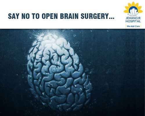 We were the first hospital in the country to successfully carry out a Brain Stenting procedure that avoids Open Brain Surgery. Recovery in this case takes just a few days. To know more,visit http://www.jehangirhospital.com/ #JehangirCare