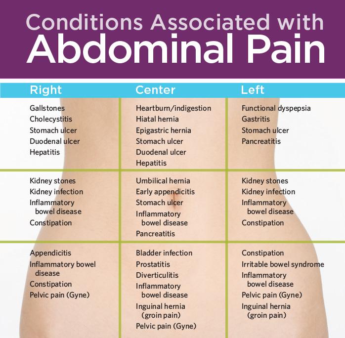 Abdominal pain chart abdominal pain pinterest abdominal pain