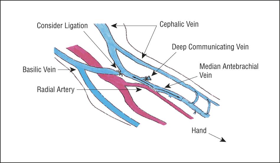 radial artery cephalic vein fistula | this better work! | pinterest, Cephalic Vein