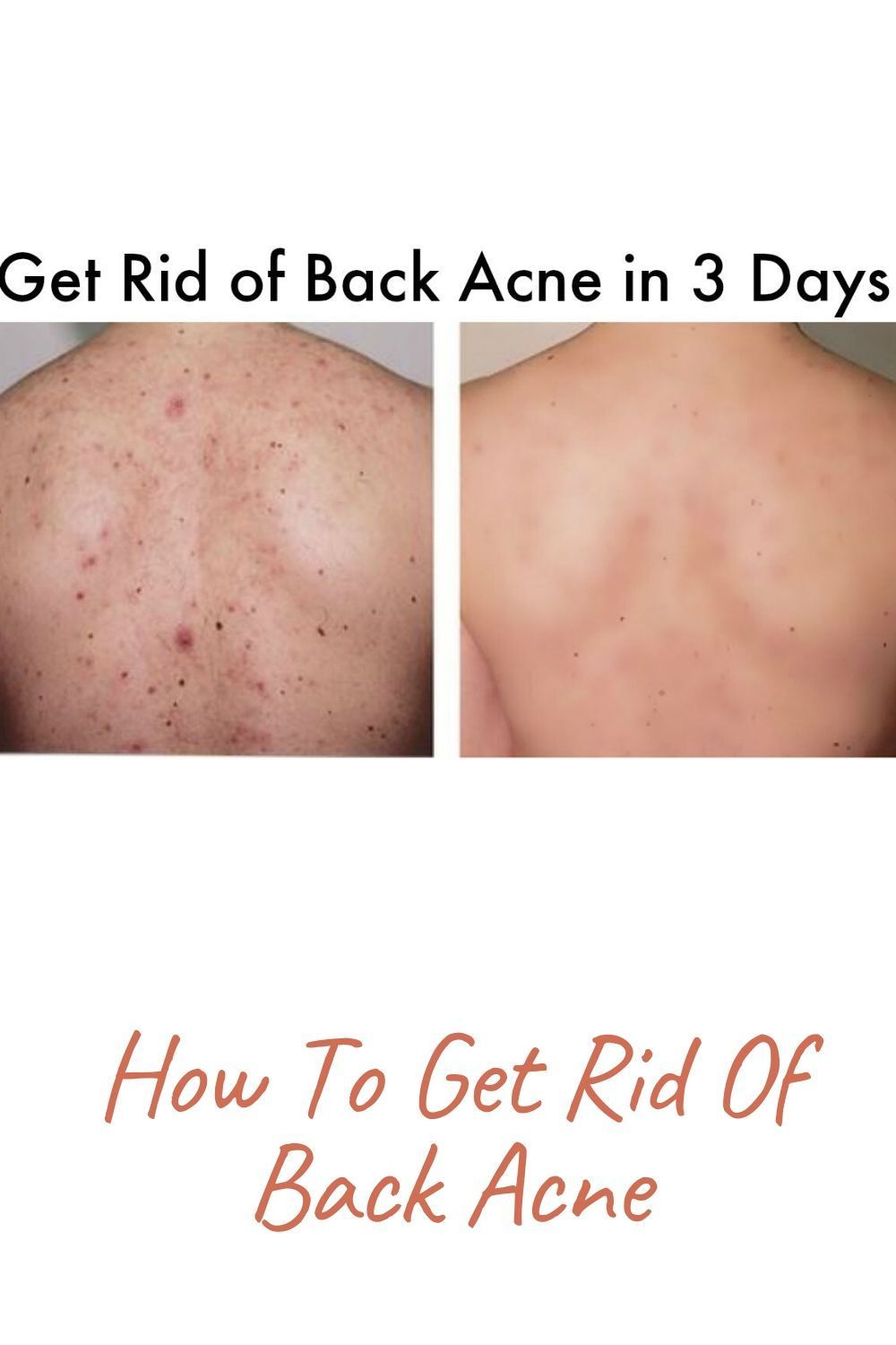 6091686299d33ecfbd391ac0b6fb5207 - How To Get Rid Of Pimple Marks On Back
