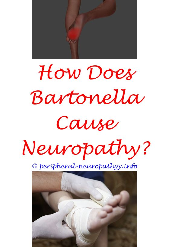 Neuropathy Right Leg Icd 10 | Peripheral neuropathy, Diabetic neuropathy  and Diabetes