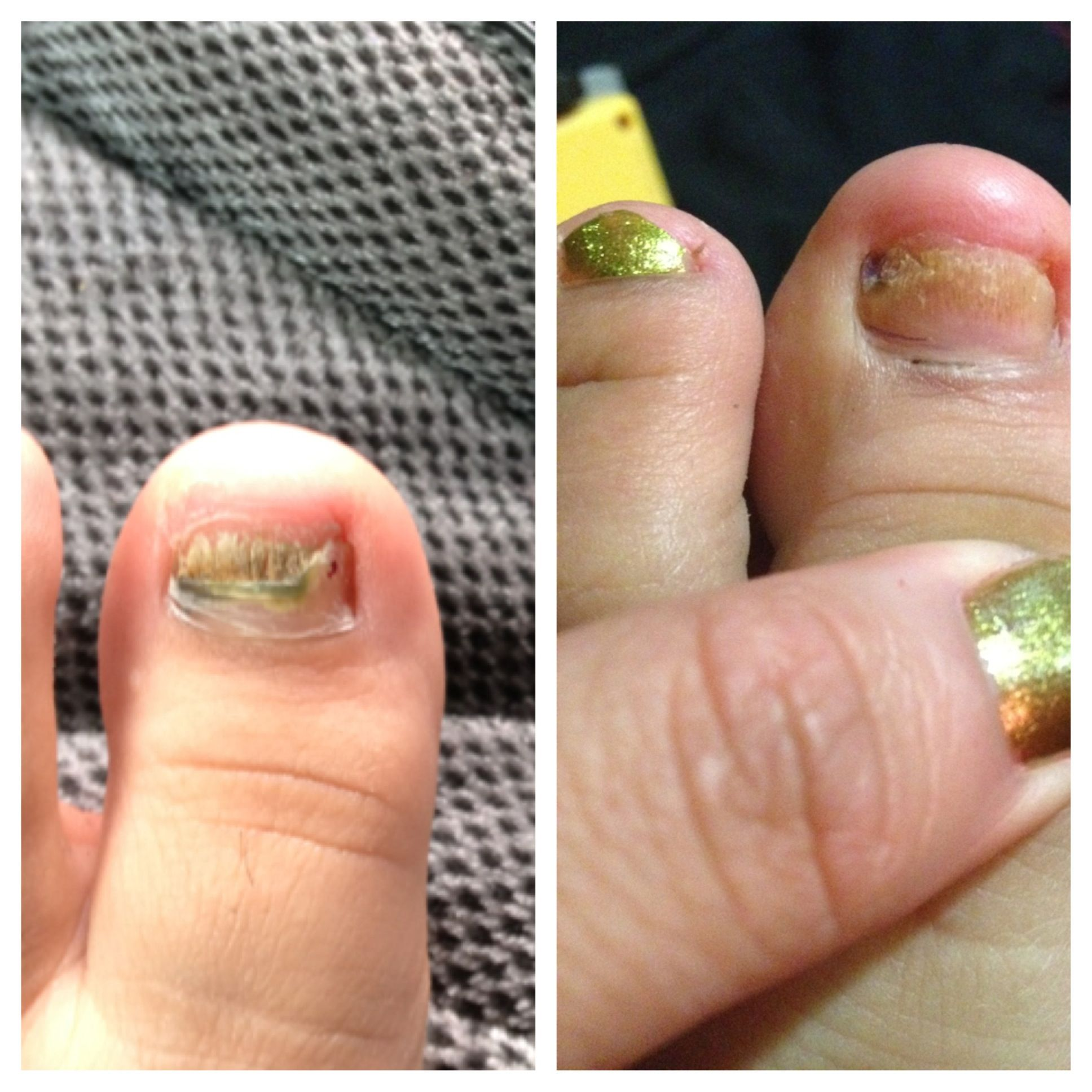 I Ve Read About Apple Cider Vinegar For Toe Nail Fungus Truthful