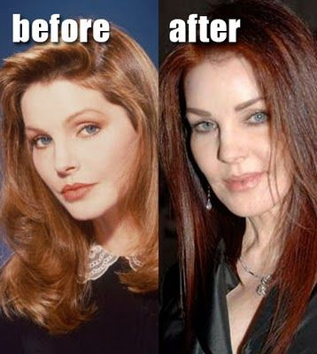 Priscilla Presley Before And After Bad Botox Cosmetic