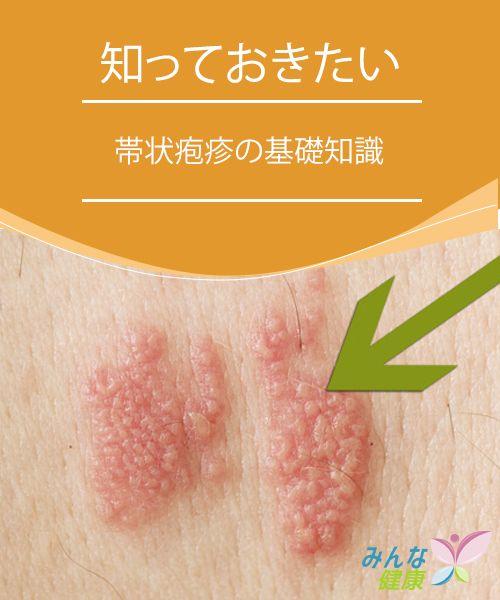 帯状 疱疹 原因