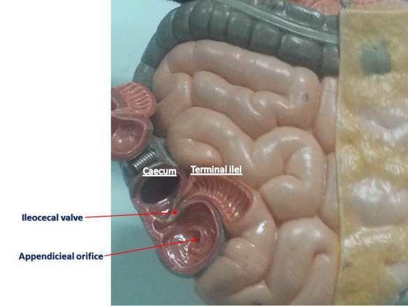 Image Result For Ileocecal Valve Small Intestine Anatomy Pinterest