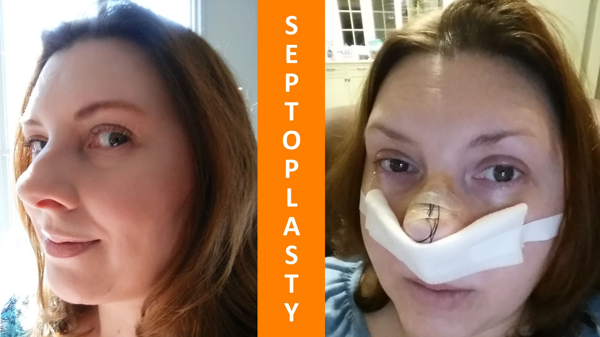 Septoplasty for a Deviant Septum | HEALTH | Septoplasty