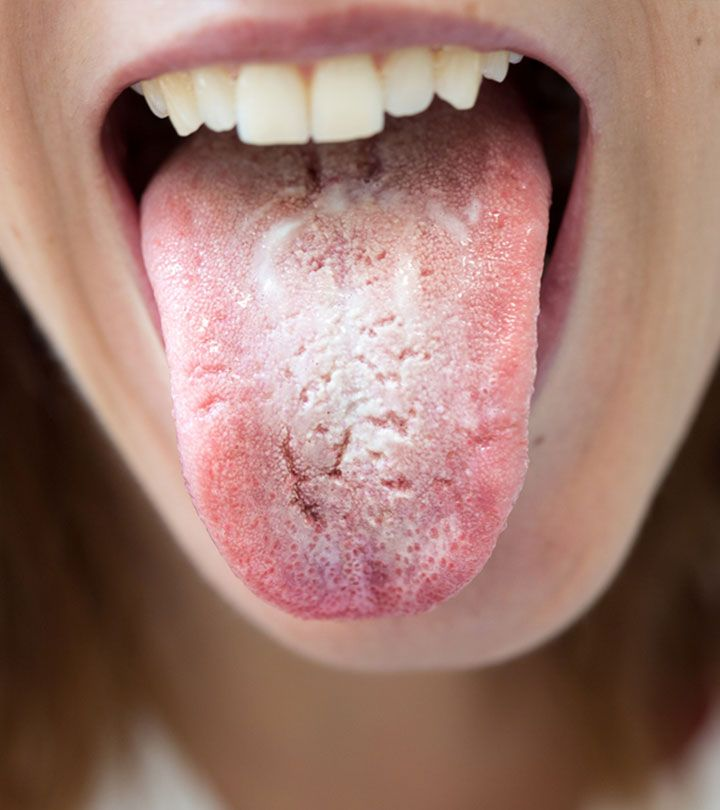 can adderall make your tongue white