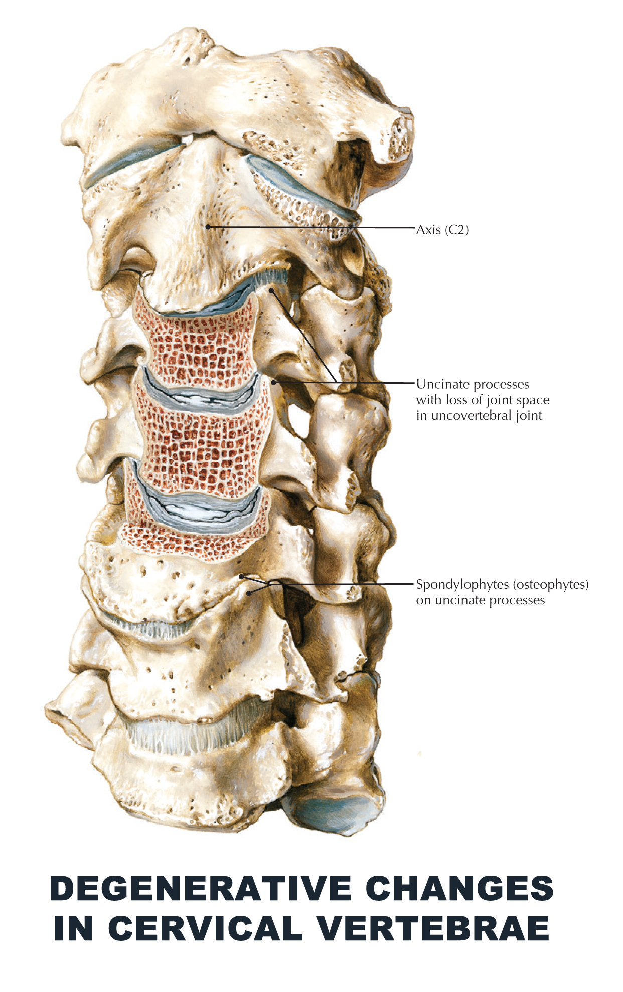 Degenerative changes in cervical vertebrae - #anatomy images ...
