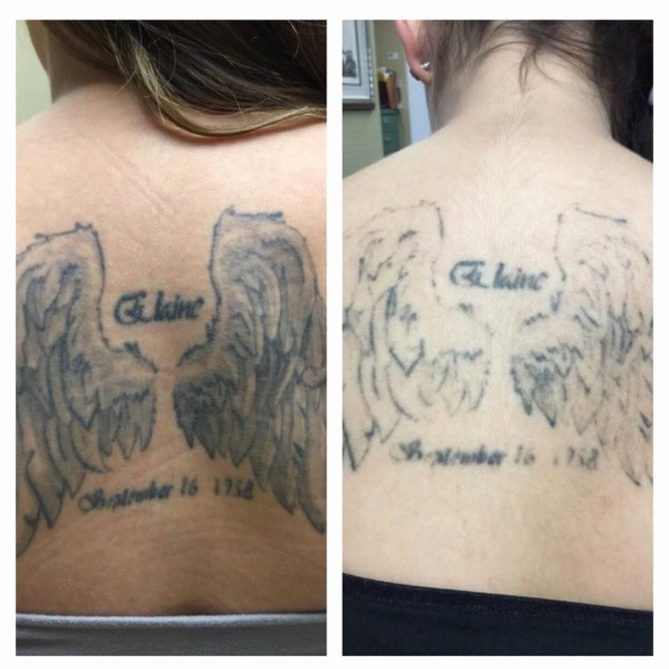 Tattoo Removal Portland Or Inspirational Before After Just One