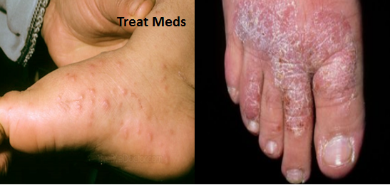 Pictures of itchy bumps on hands and ankles