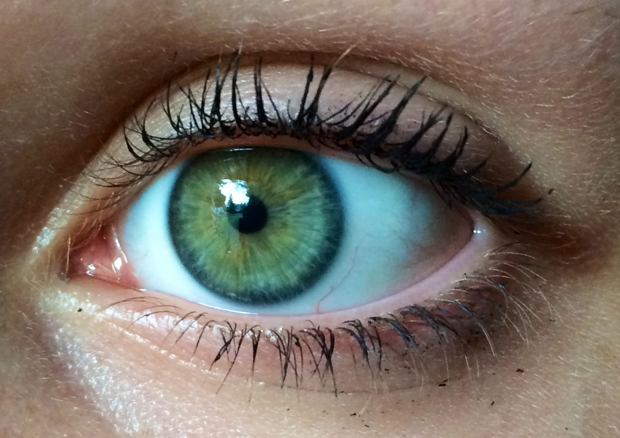 Green Blue Eyes | My eyes are like green and blue (ring ...