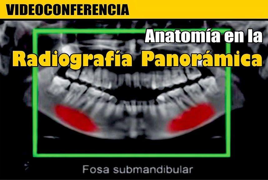 VIDEOCONFERENCIA: Anatomía en la Radiografía Panorámica - Parte 2 ...