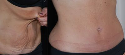 stretch marks on breast area - 1600×704