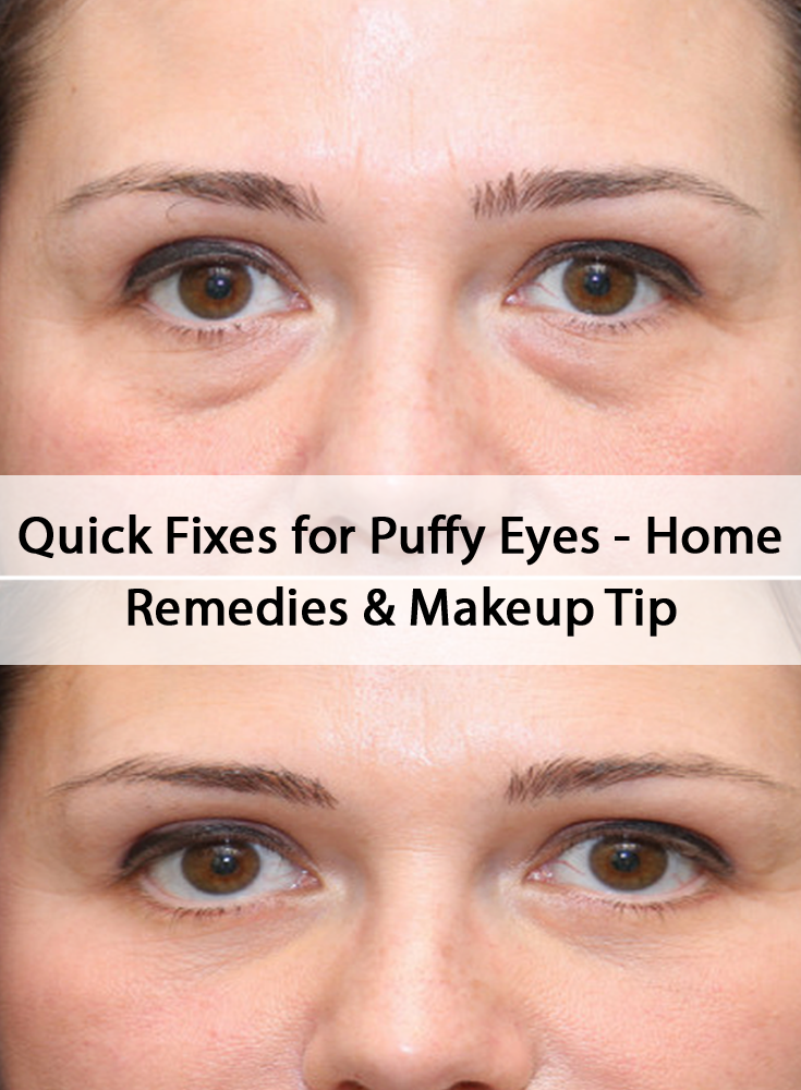 60b319b4dc8690fb8bda504a2c4ad1ce - How To Get Rid Of Puffy Eyes From No Sleep