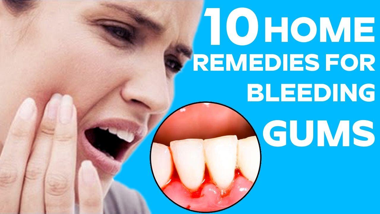 Top 10 Home Remedies to Heal Bleeding Gums Health