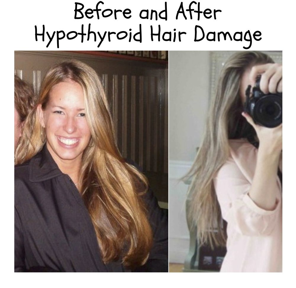 Thyroid Hair Loss Hypothyroidism Check Out This Great Article