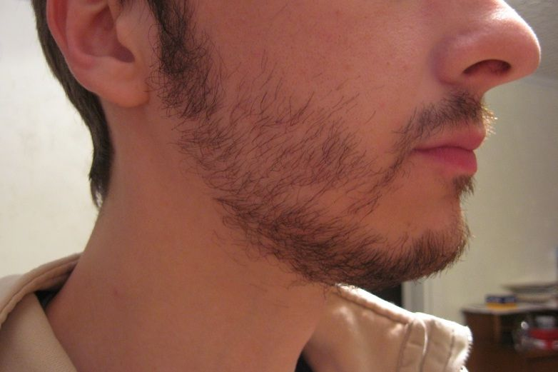 How to Fix a Patchy Beard Permanently #beard #beardtransplant  #hairtransplant