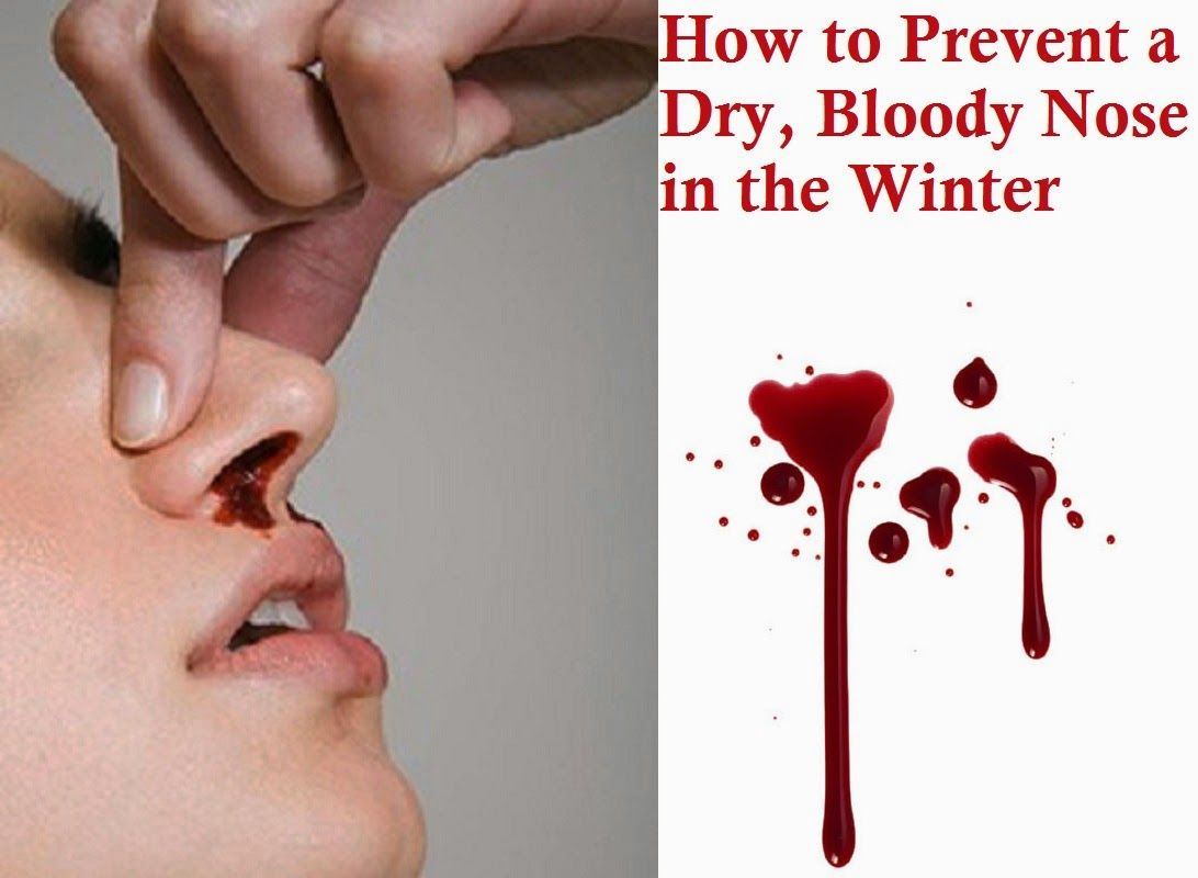 How to Prevent a Dry, Bloody Nose in the Winter   Who Knew   Dry