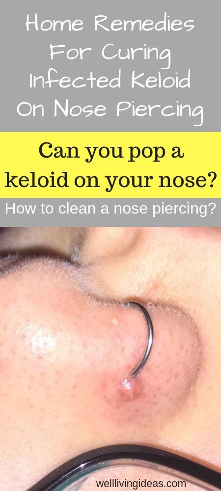 10 Natural Home Remedies For Curing Infected Keloid On ...