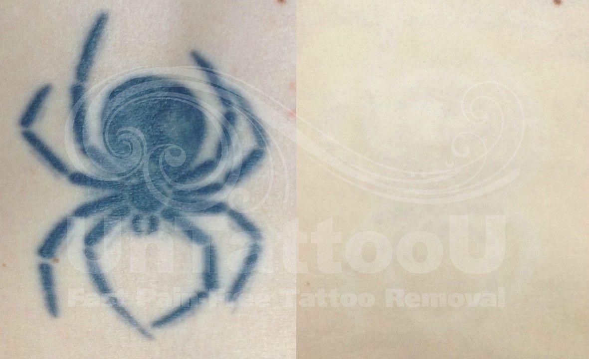Picosure laser tattoo removal untattoou picosure