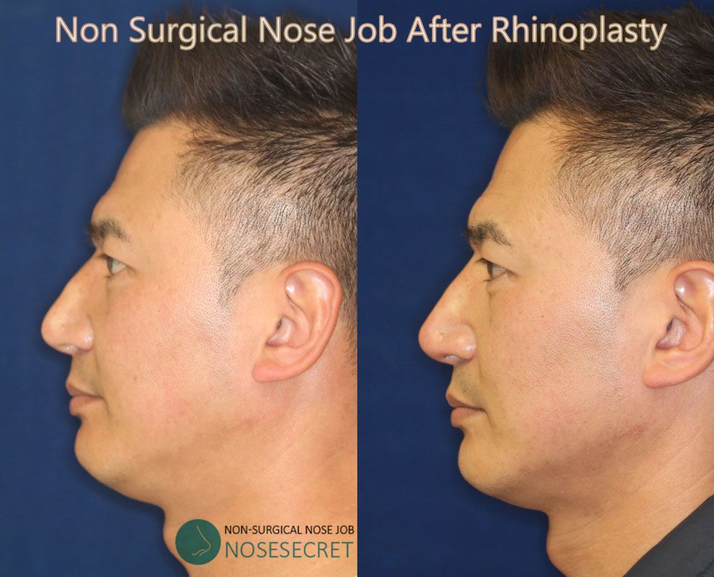 Non Surgical Nose Job After Rhinoplasty Non Surgical