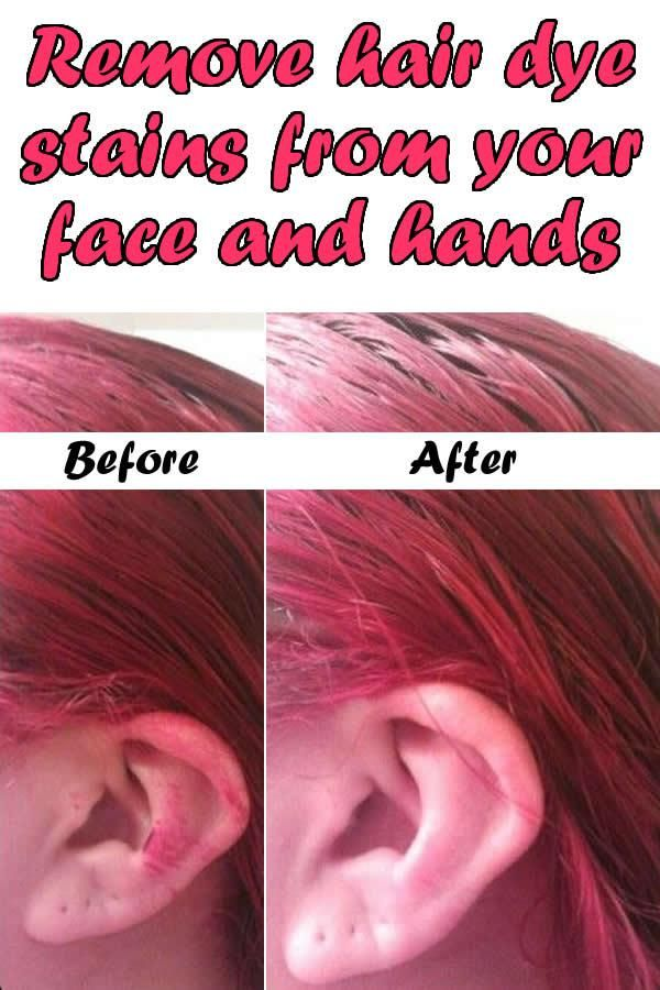 Remove Hair Dye Stains From Your Face And Hands Home Remedies