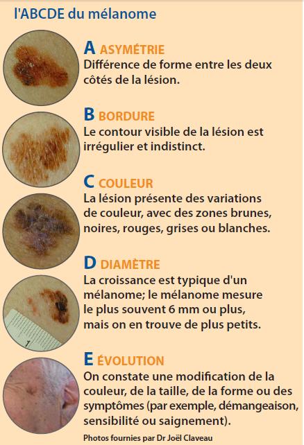 taches brune sur la peau