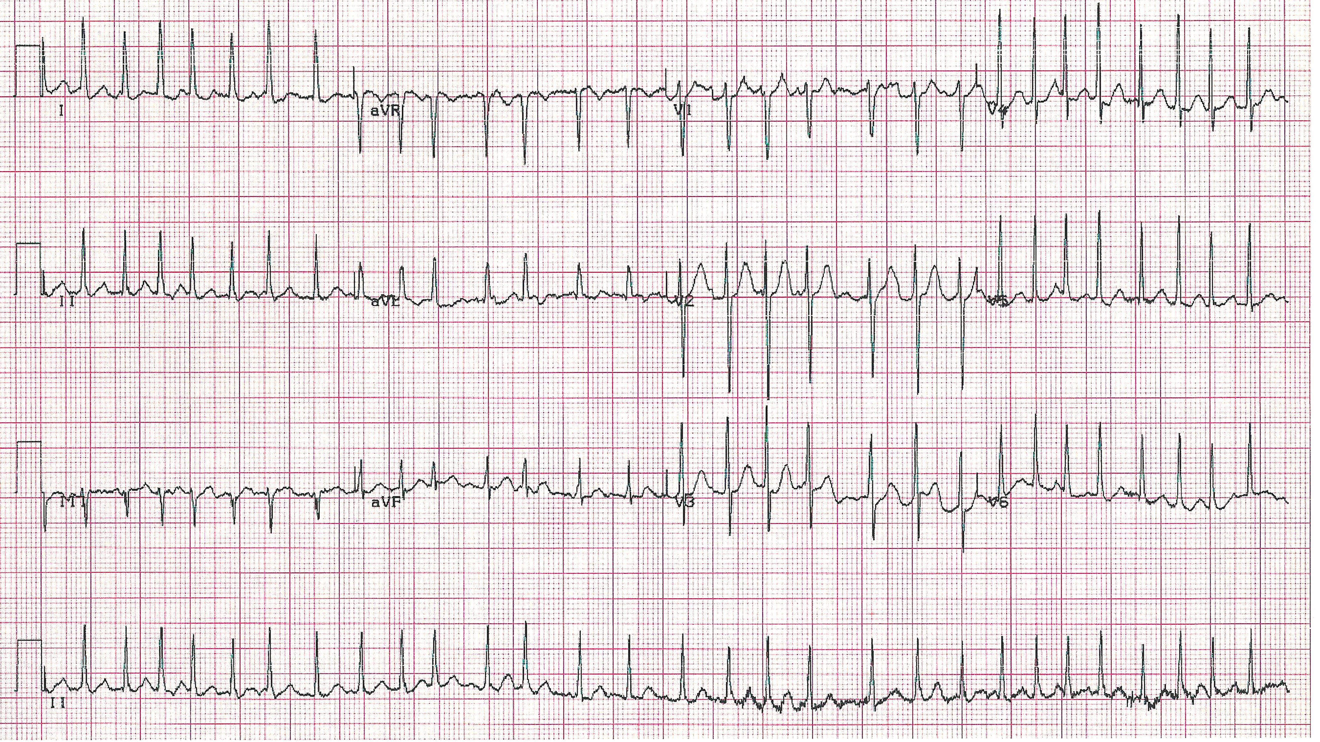 How to Manage Patients with Atrial Fibrillation and Prior