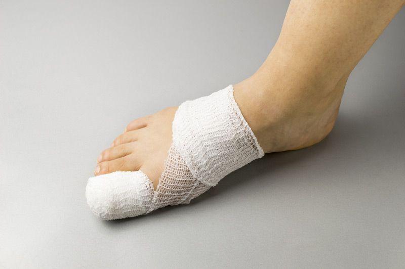 Athome tips for a broken toe broken toe broken big toe