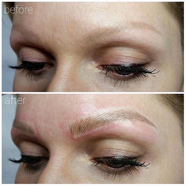 O L D T A T T O O F I X Previously Tattooed Brows Were Faded