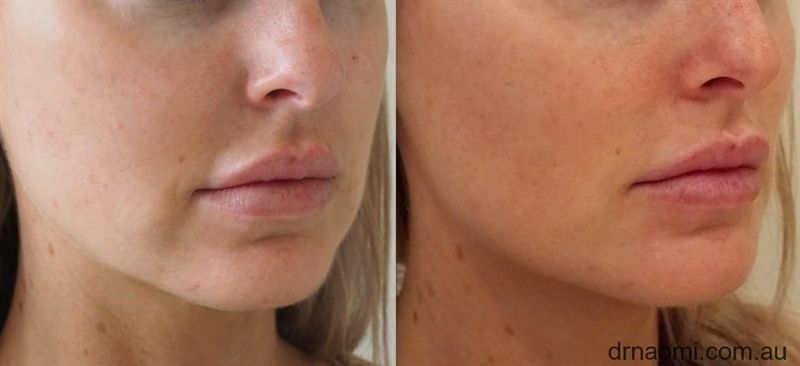 Before and after dermal filler to marionettes, jawline, chin