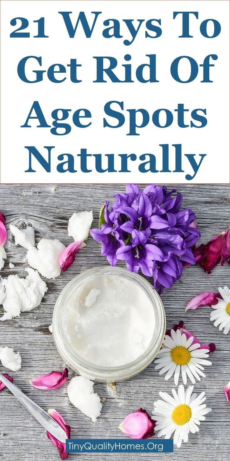 21 ways to get rid of age spots liver spots or brown