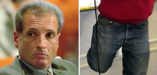 O cirurgião que removeu a perna errada