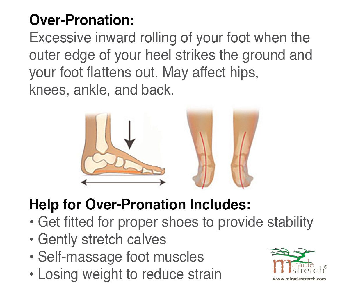 Overpronation can contribute to piriformis syndrome and