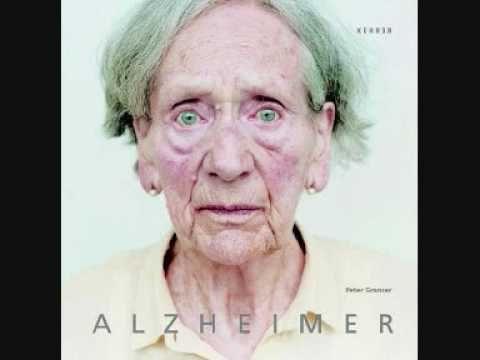 10 Sintomas de la Enfermedad de Alzheimer | Cuidadores y