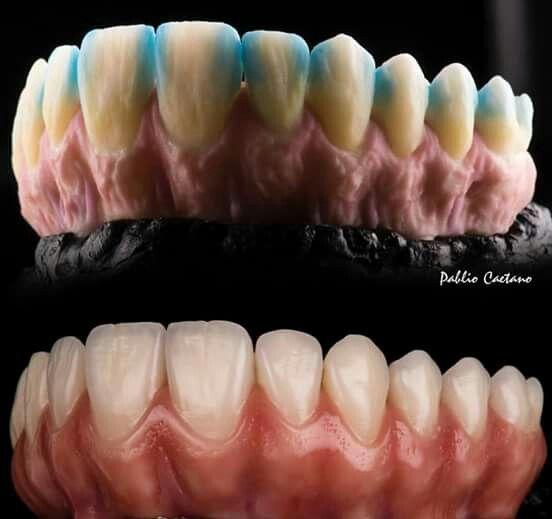 Pin De Lynette Brooks En Porcelain Teeth Arte Dental Estetica Dental Dental