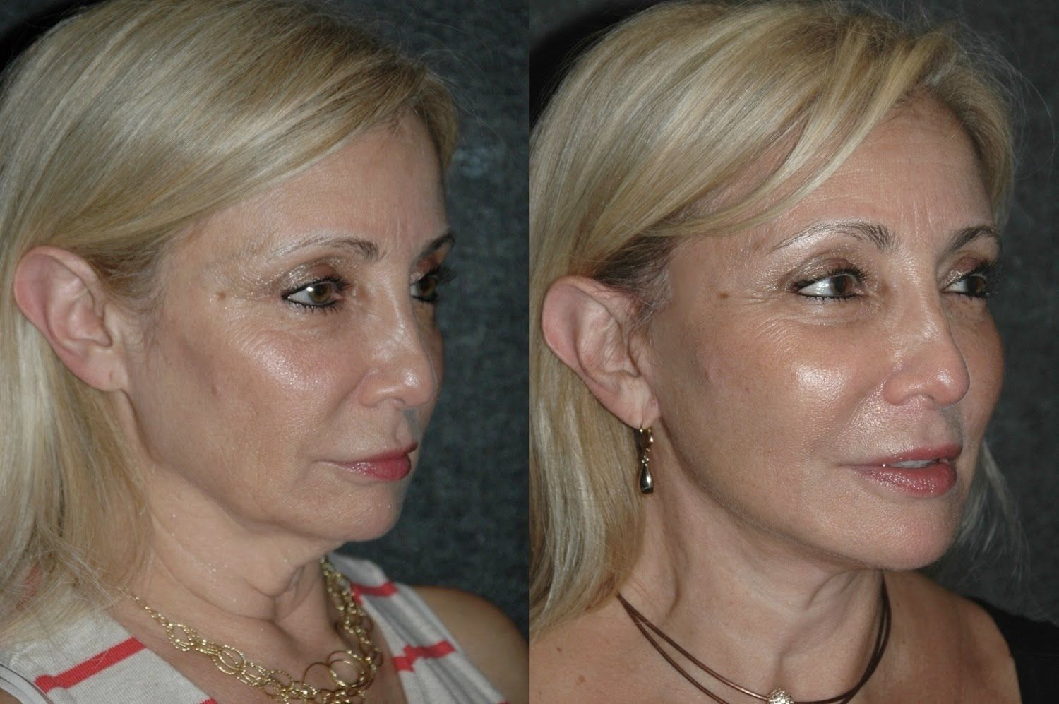 Local Anesthesia Neck Lift Before And After 59 Year Old