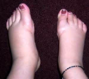 What To Do About Diabetes Swollen Feet Swollen Feet Foot And