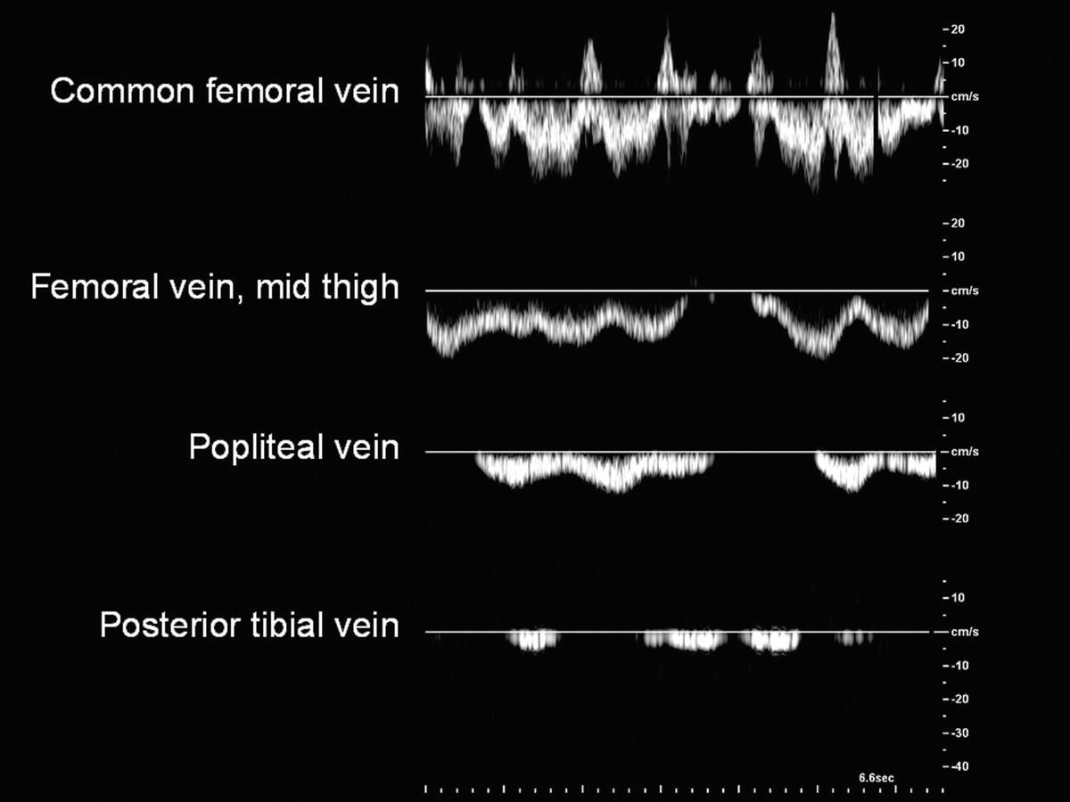 Pin By Catherine Califa On Vascular Sonography