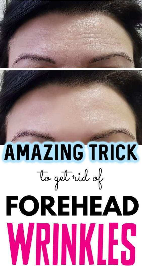 How To Get Rid Of Sleep Lines On Cheeks