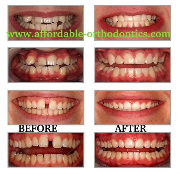 Dental Braces on | Dental Braces | Dental braces, Dental