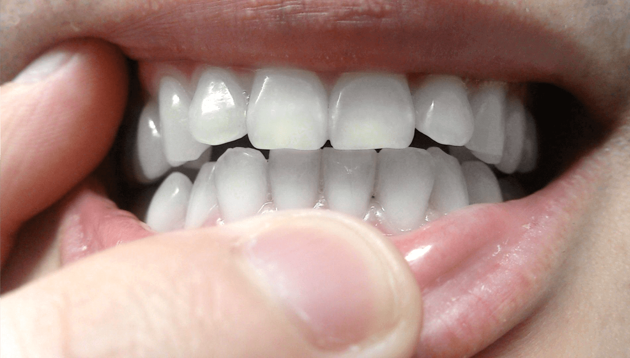 ブレスマイルクリアSDC   Must Items Now【2020】   歯 ホワイトニング, 歯を白く, 歯のホワイトニング
