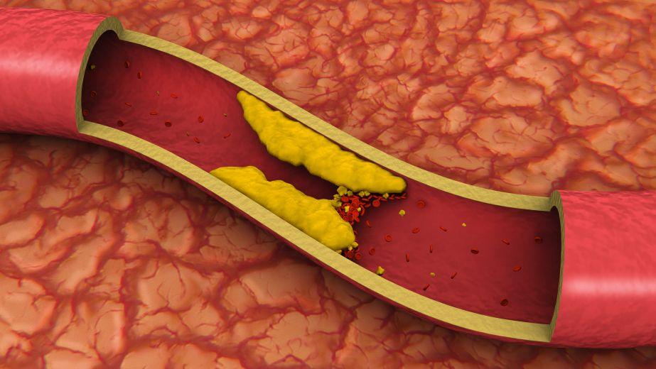 Если сосуды забиты холестерином признаки